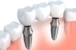 implant-supported-bridge